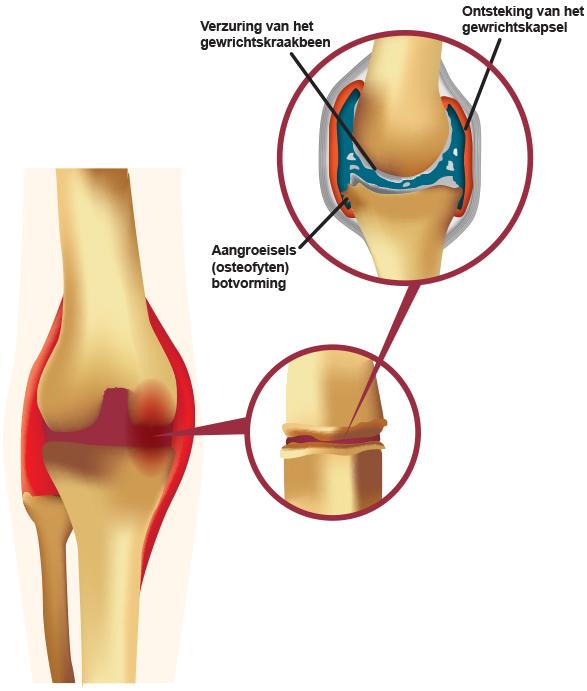 klachten artrose