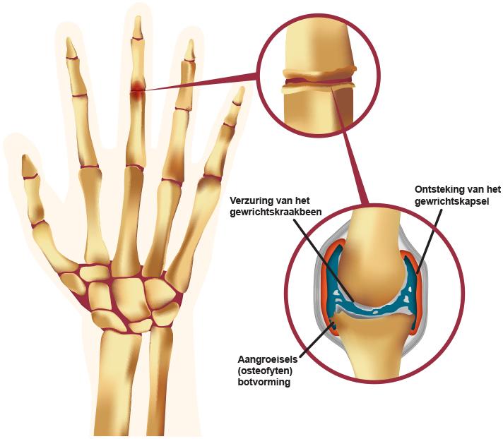 ontzuren bij artrose
